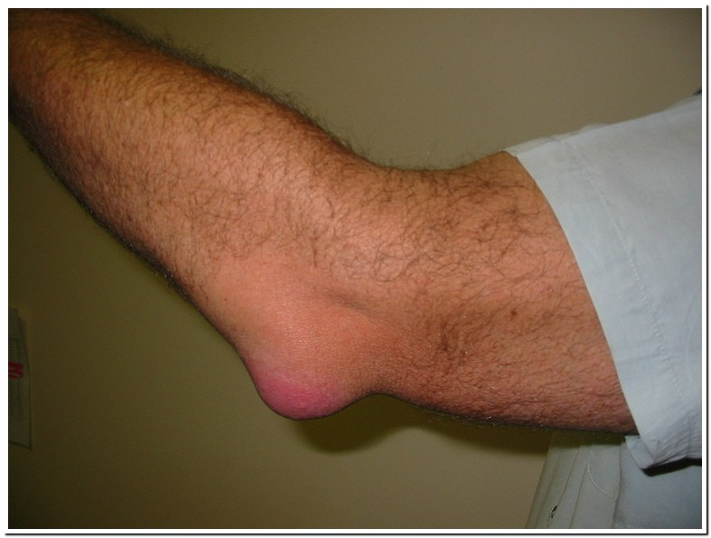 Abscess On Right Elbow Icd 10