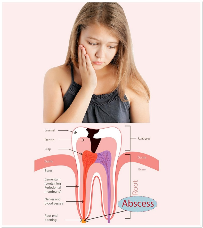 Abscessed Tooth During Pregnancy Treatment
