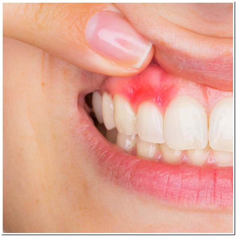 Abscessed Tooth When Pregnant