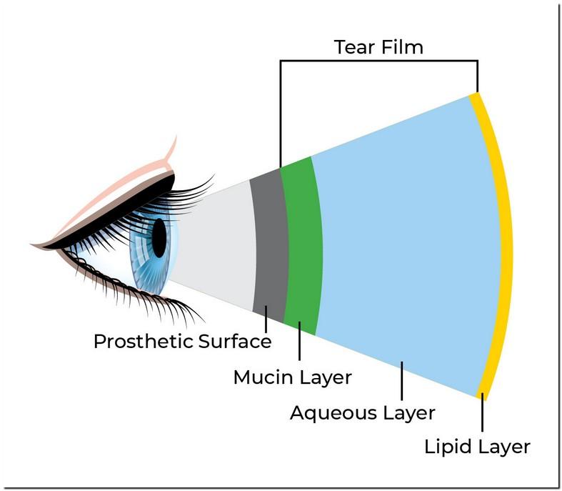 Artificial Tears Burn Eyes