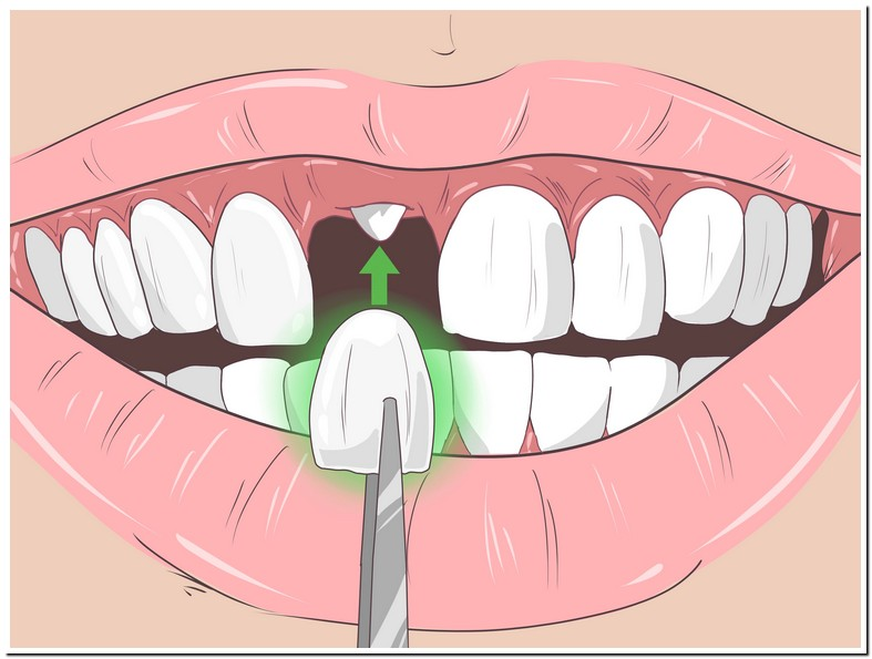 Brown Stains On Back Of Teeth Treatment
