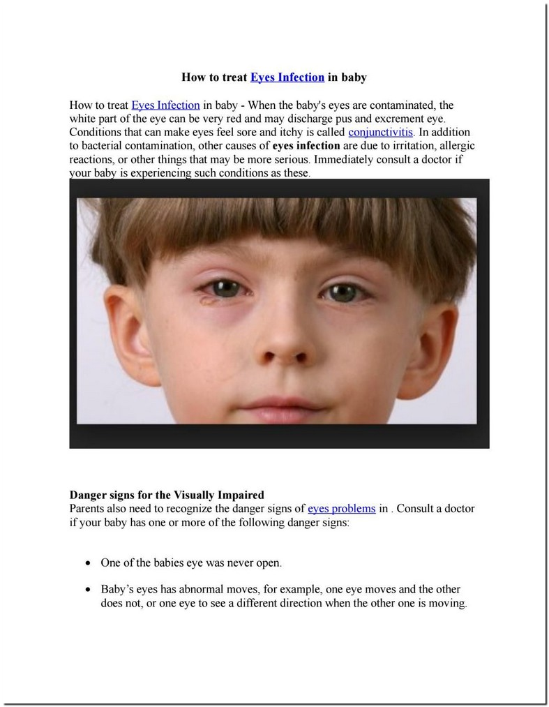 Child One Eye Opens More Than The Other