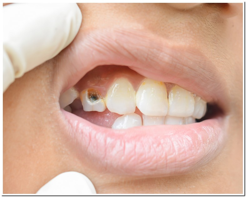 Chipped Bottom Front Tooth Repair