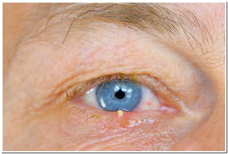 Clear Pimple On Eyelid Rim