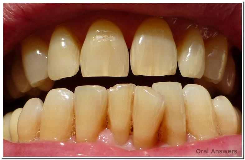 Cracked Bottom Front Teeth