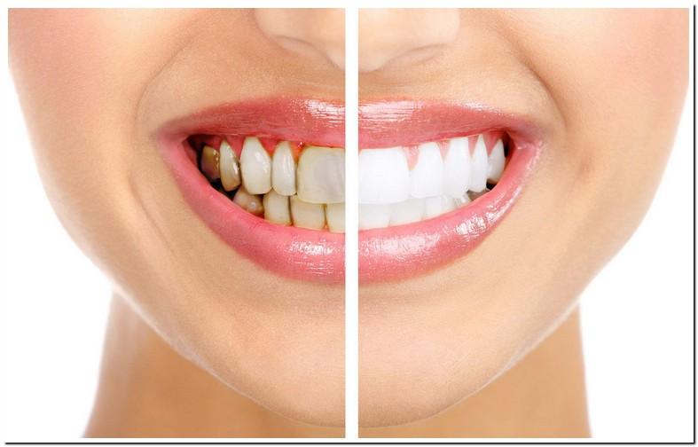 Dark Spots On Teeth That Aren Cavities