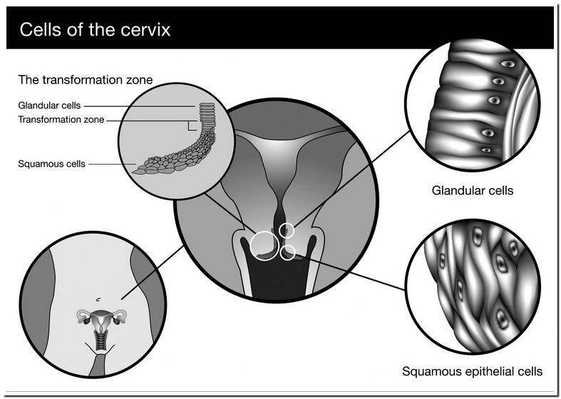 Endocervical Cellstransformation Zone Component Present