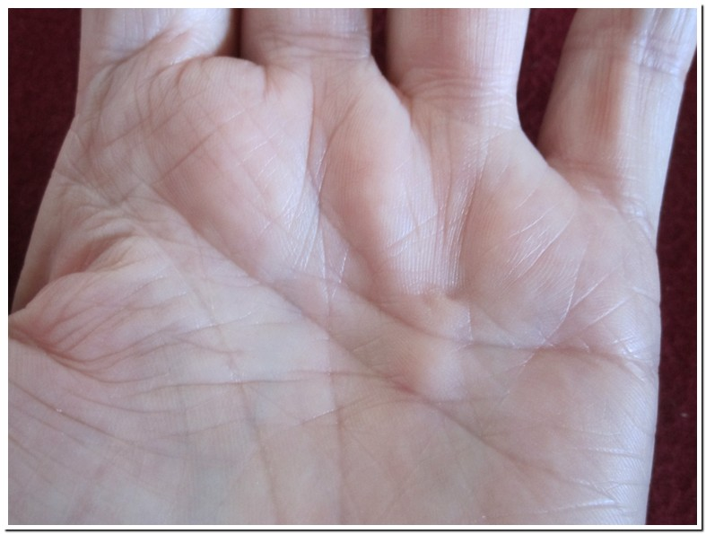 Knot In Palm Of Hand