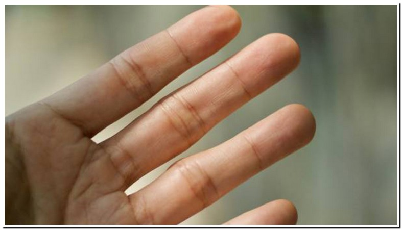 Lumps In Palm Of Hand Under Skin