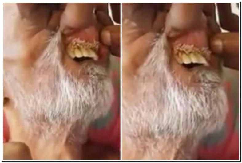 Maggots In Teeth Symptoms