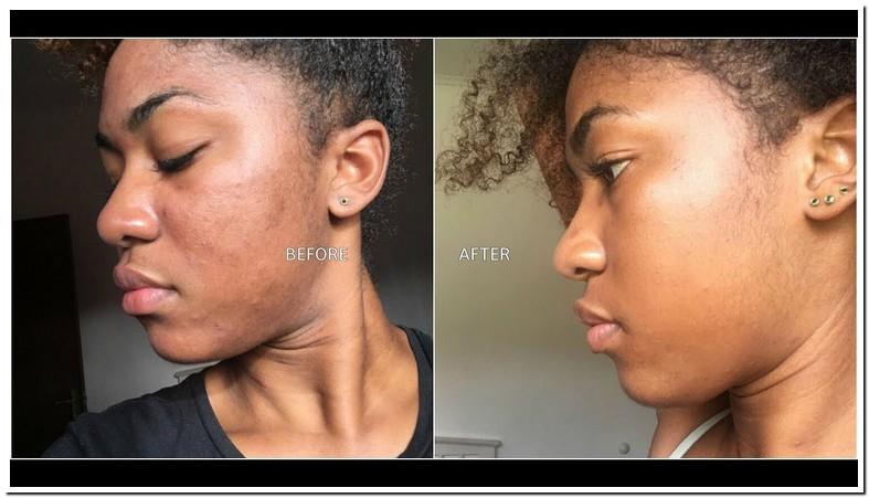 Microdermabrasion For Dark Spots On Face