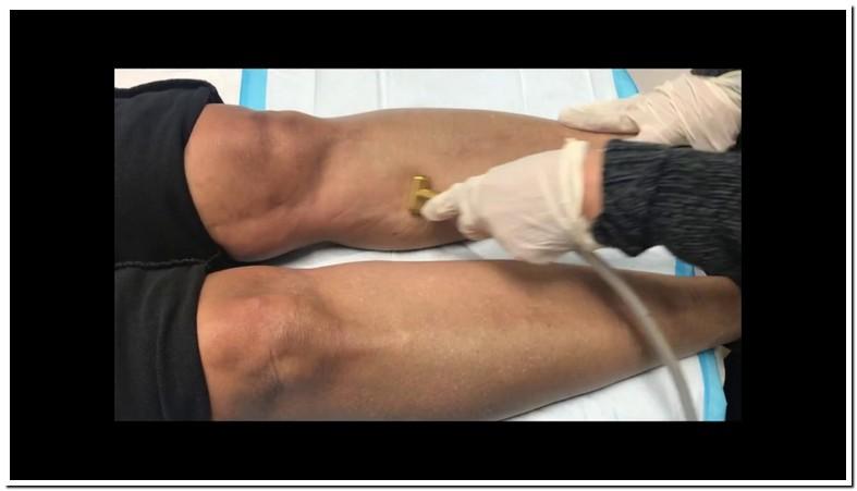 Microdermabrasion For Dark Spots On Legs