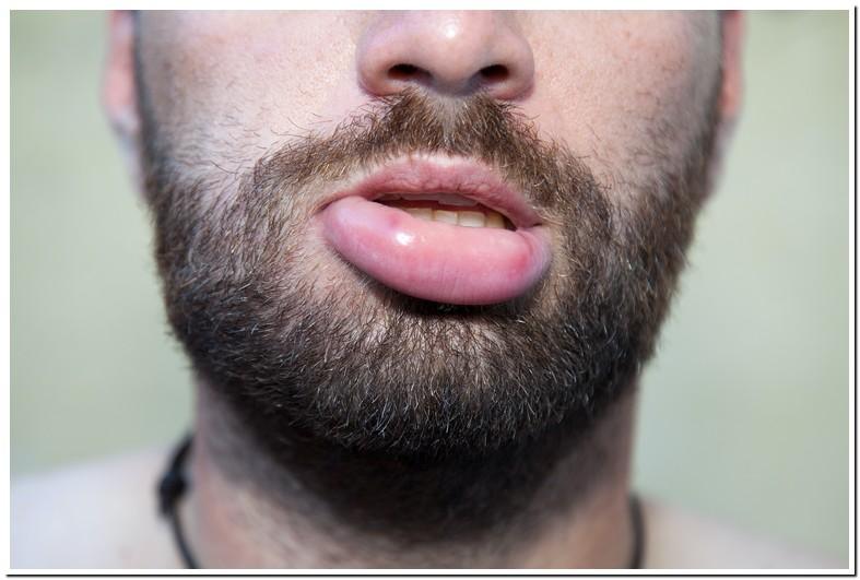My Bottom Lip Is Swollen And Numb