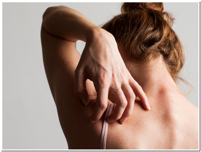 Pinched Nerve Itchy Back
