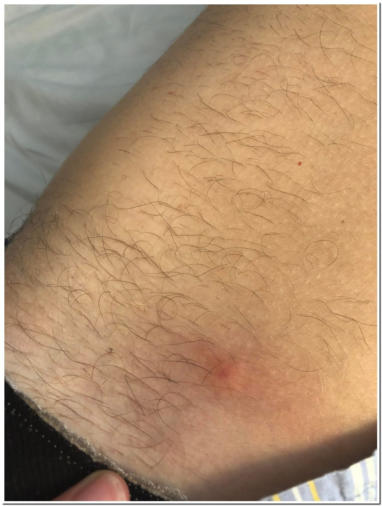 Red Spots On Inner Thigh Female
