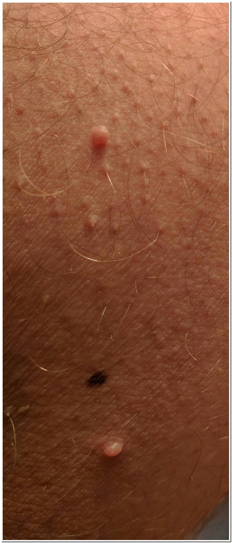 Red Spots On Inner Thigh Near Groin