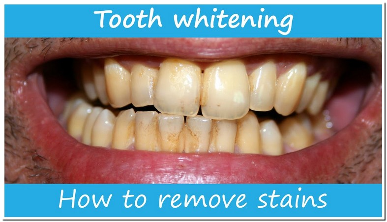 Remove Brown Stains On Back Of Teeth