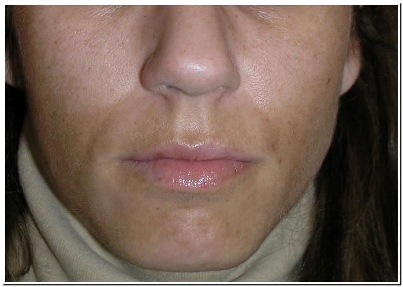 Skin Darkening On Upper Lip After Pregnancy