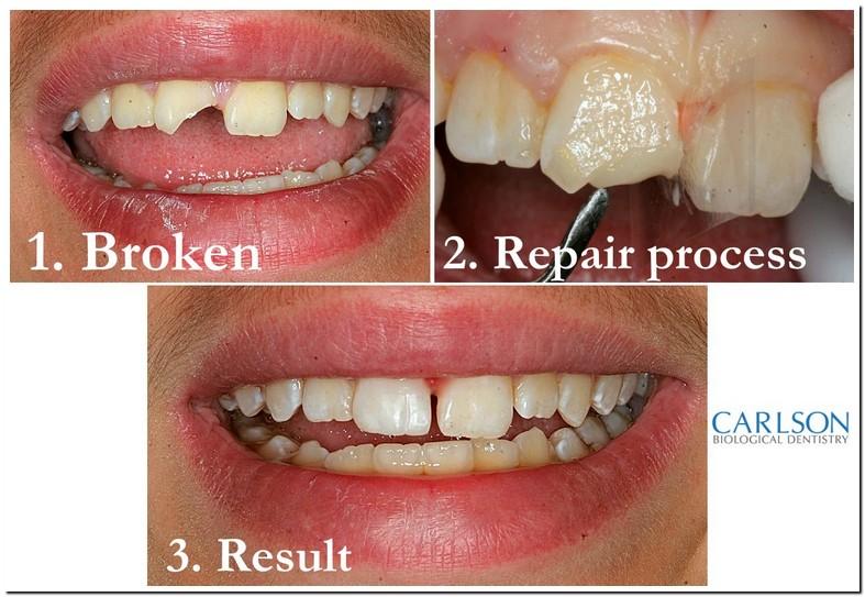 Super Gluing Broken Teeth