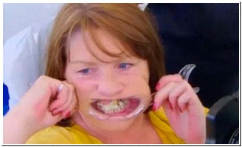 Super Gluing Teeth