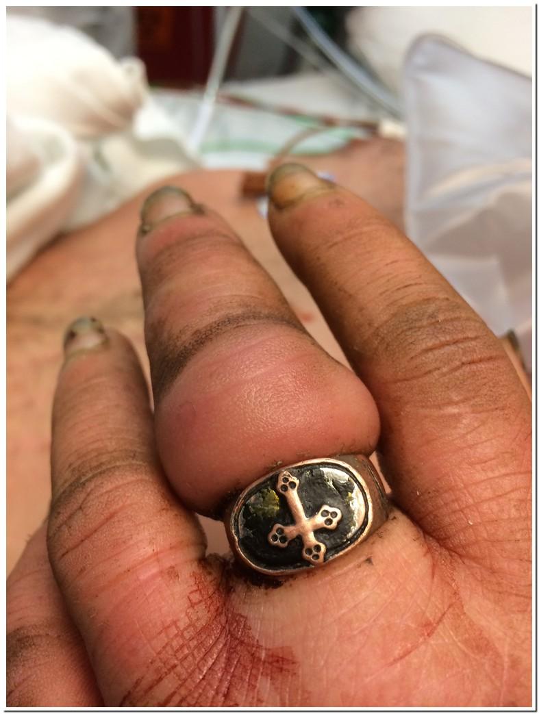 Swollen Fingers Ring Stuck