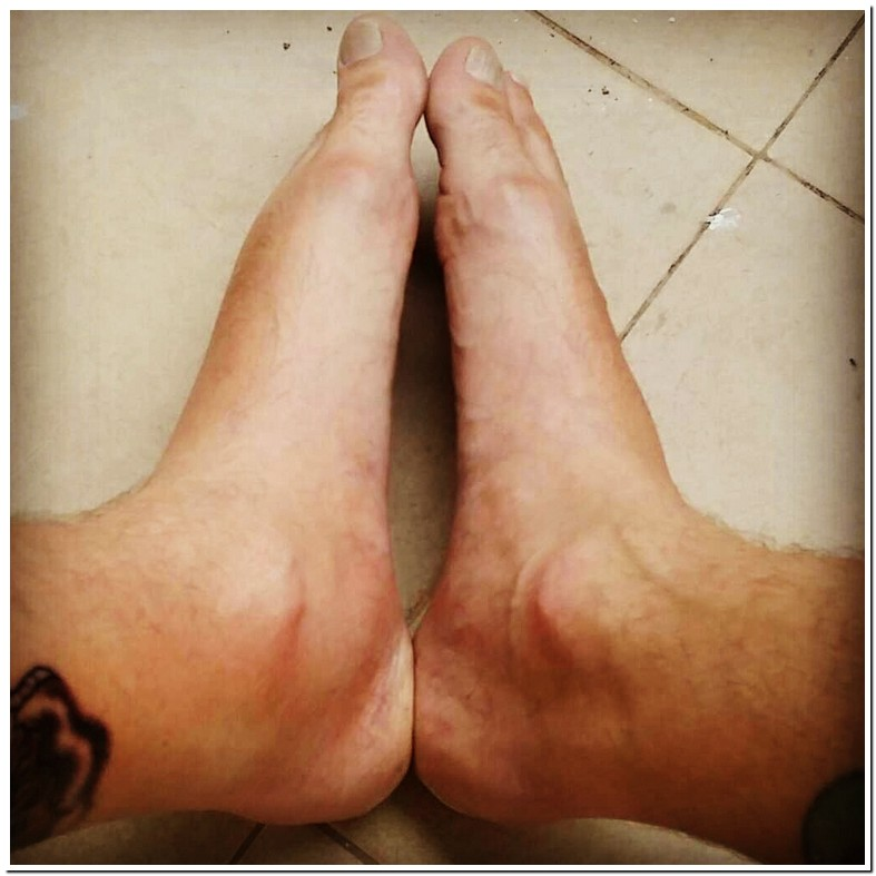 Swollen Inside Ankles Pictures