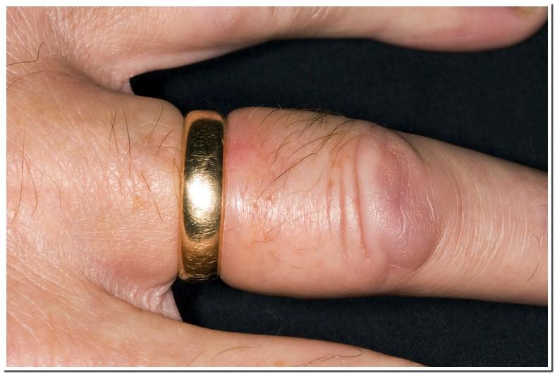 Swollen Ring Finger Joint