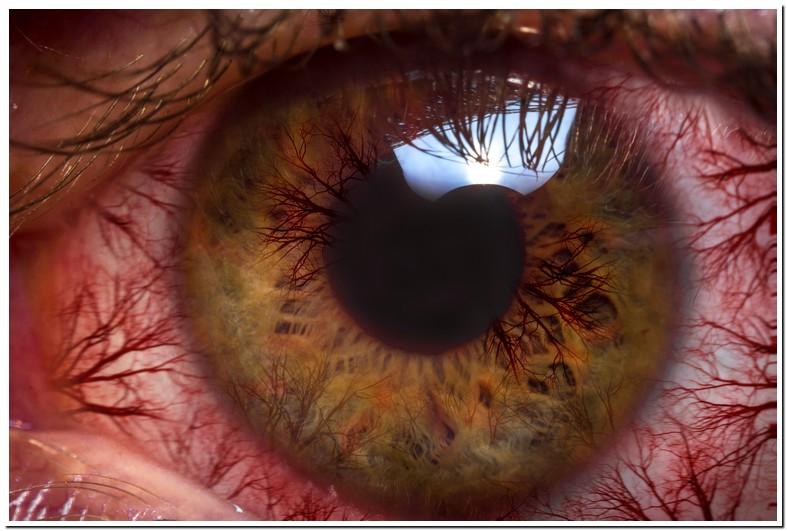 Tears Burn Eyes