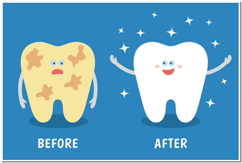 Teeth Sensitivity After Cleaning