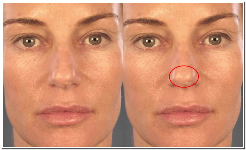 Tip Of Nose Reduction