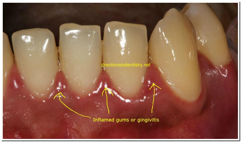 Tooth Abscess While Pregnant