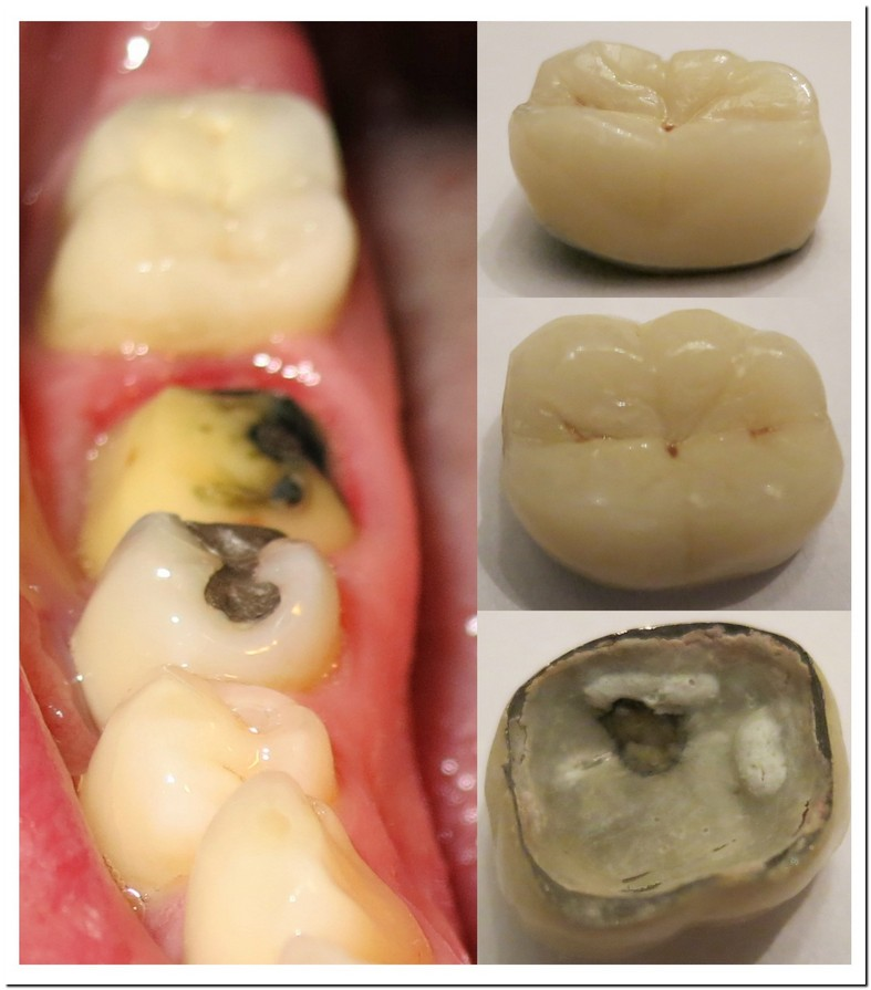 Tooth Crown Fell Out No Pain