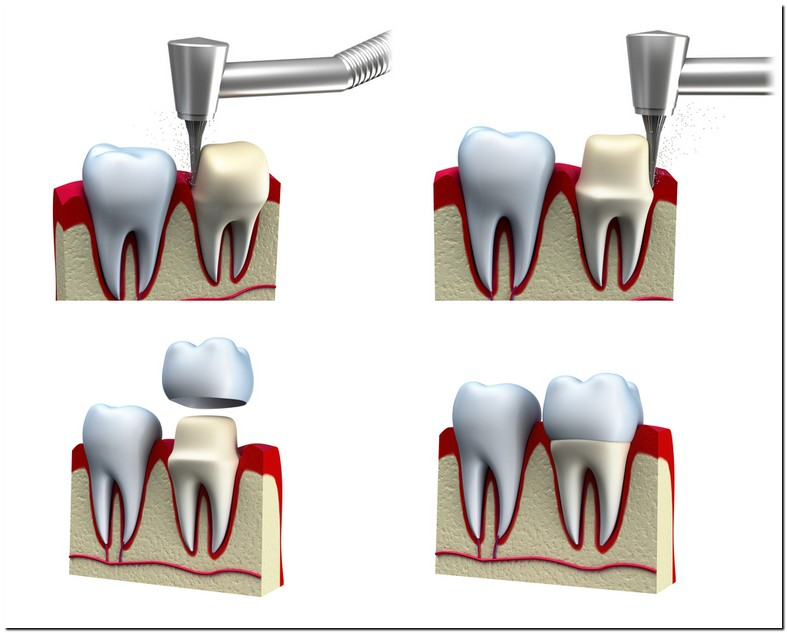 Tooth Sensitive To Pressure After Crown