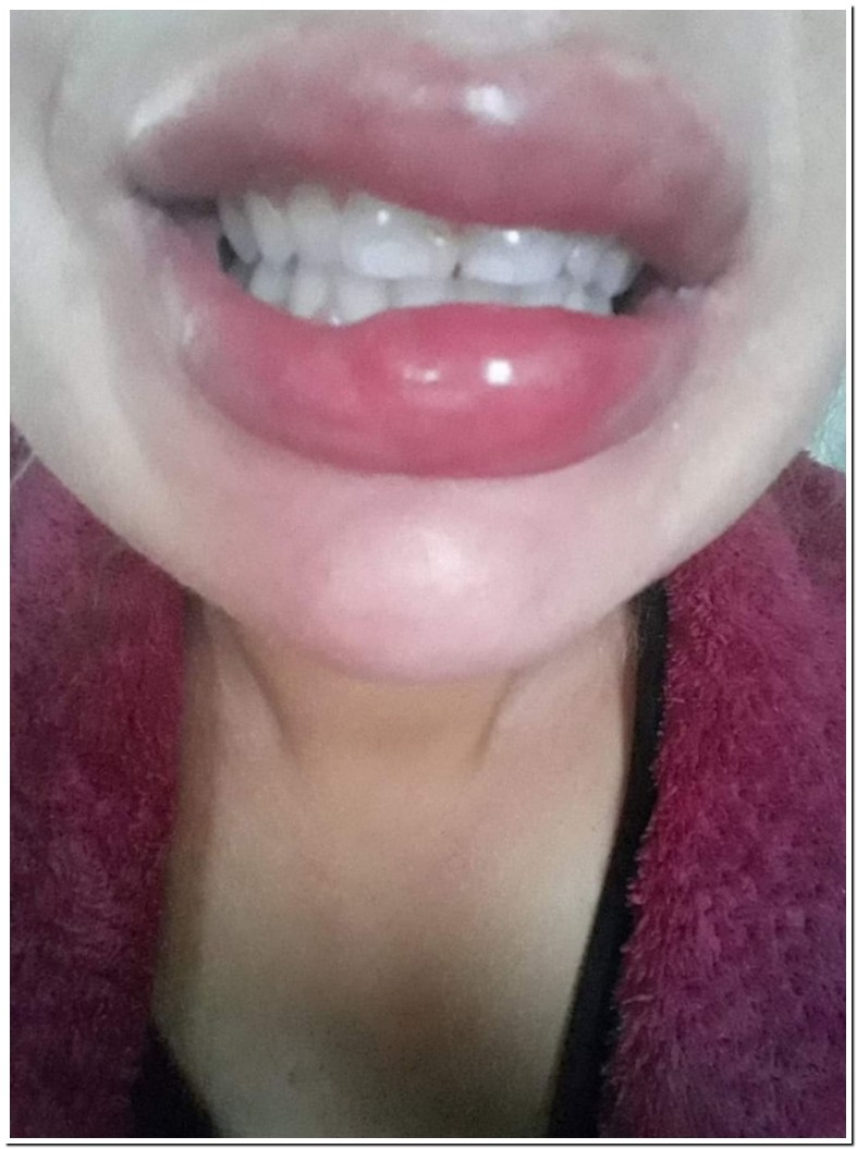 Tooth Through Lip Nhs