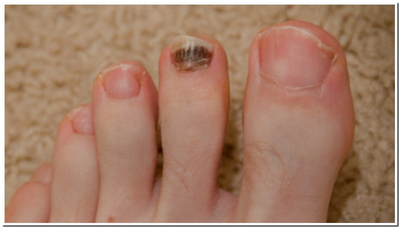 What Causes Brown Spots On Toenails