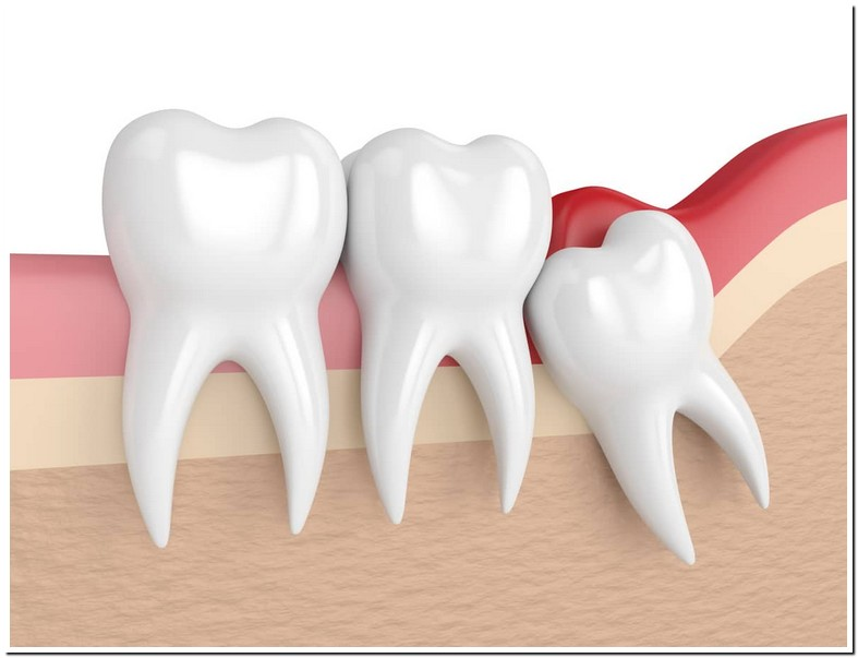 Wisdom Tooth Filling Or Extraction